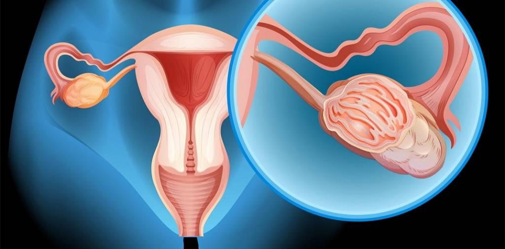 Cancer ovarian 2