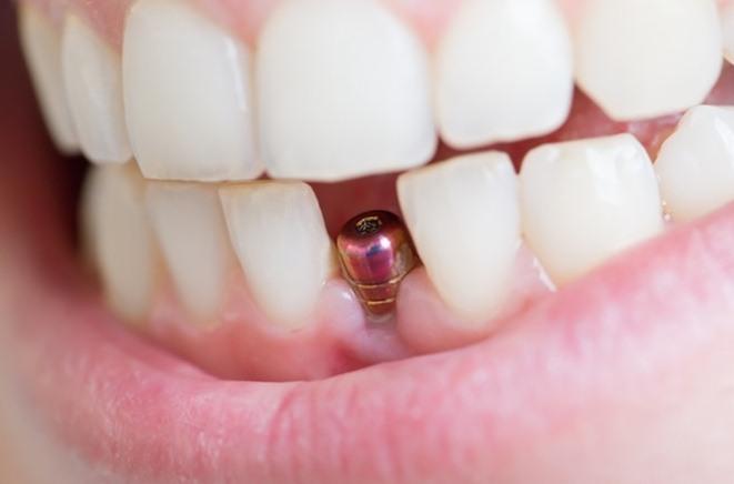 Ce trebuie să știi despre implantul dentar