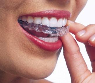 Cât-timp-este-necesar-să-fie-purtat-aparatul-dentar-de-contenție