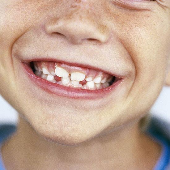 21297-motive-pentru-care-copilul-tău-ar-trebui-să-fie-văzut-de-un-ortodont